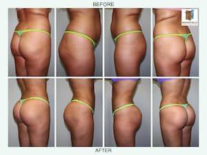 brazilian butt lift gallery mansfield cosmetic surgery center