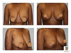 mastopexy gallery mansfield cosmetic surgery center