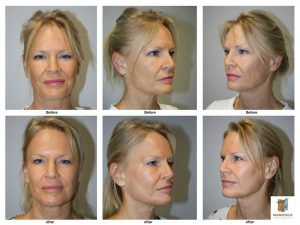mansfield cosmetic surgery center Co2 laser skin resurfacing