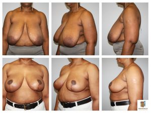 breast reduction mansfield cosmetic surgery center