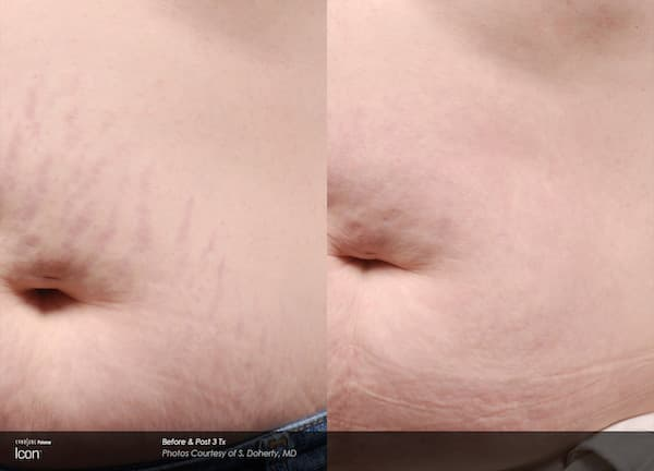 icon stretch marks mansfield cosmetic surgery center