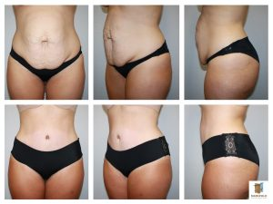 tummy tuck diastasis repair mansfield cosmetic surgery center