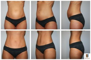 umbilical float tummy tuck mansfield cosmetic surgery center