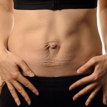 abdominal hernia repair mansfield cosmetic surgery center