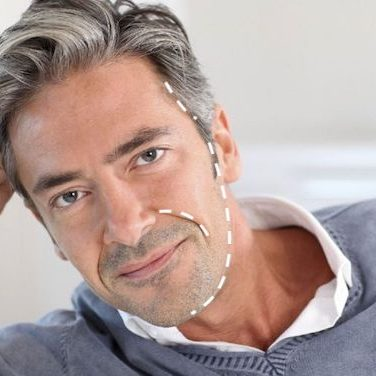 male face lift mansfield cosmetic surgery center