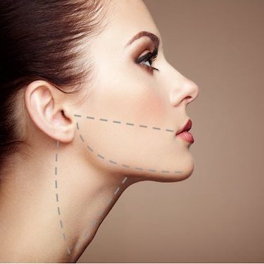 thermitight mansfield cosmetic surgery center
