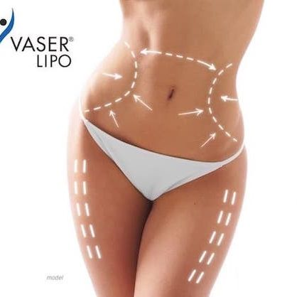 vaser lipo mansfield cosmetic surgery center